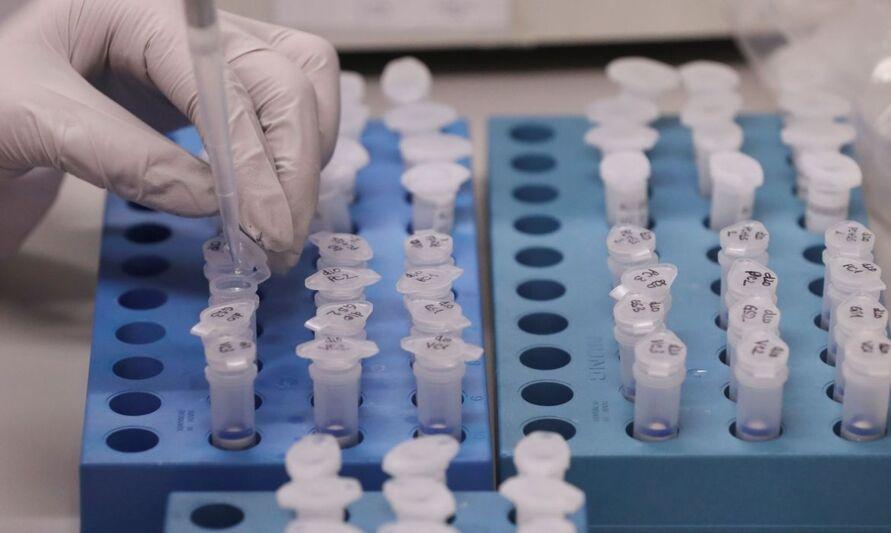 Imagem ilustrativa da notícia: Jovem de 19 anos e mais cinco pessoas estão com coronavírus no Pará; total chega a 40