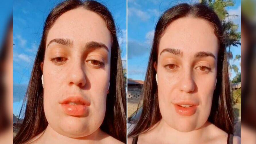 Jovem viralizou ao mostrar resultado de um procedimento estético feito no rosto.