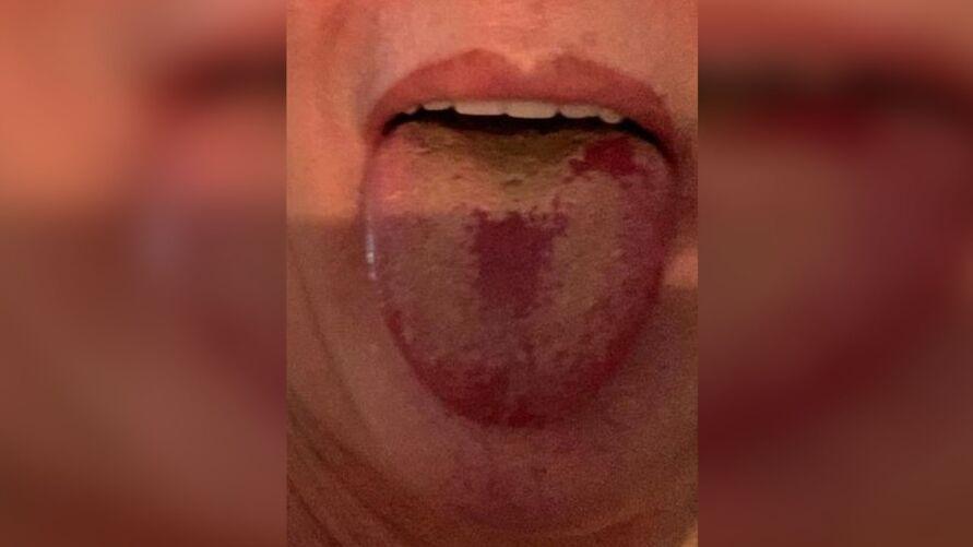 Um médico fez a postagem nas redes sociais sobre o novo sintoma