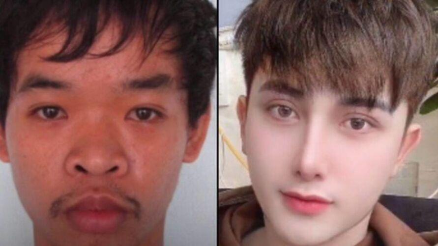 Imagem ilustrativa da notícia: Jovem faz nove cirurgias plásticas após ser chamado de 'feio'