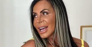 Imagem ilustrativa da notícia: Gretchen faz nova harmonização e recebe elogios: 'perfeita'