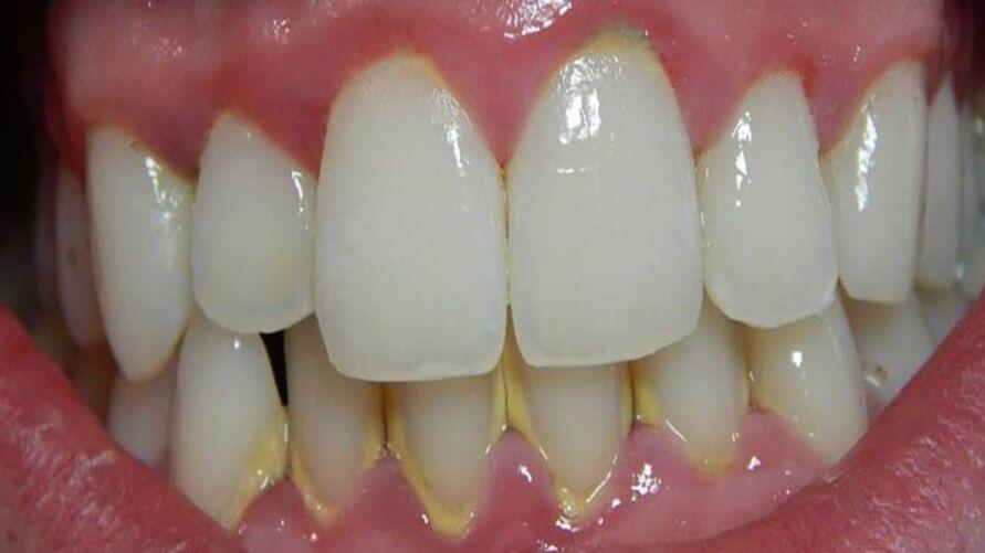 Imagem ilustrativa da notícia: Descuido na higiene bucal pode ocasionar consequências sérias