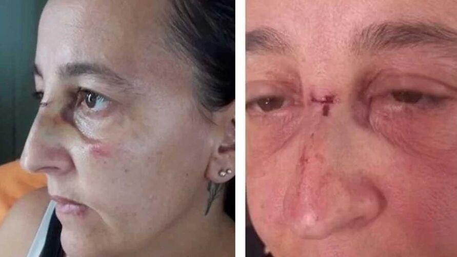 Mulher foi atacada com bexiga enquanto caminhava pela rua. Além de ter um corte no nariz, ela pegou uma infecção ocular.