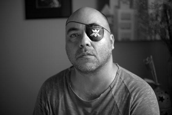 Fotógrafo Alex Silveira perdeu quase toda a visão do olho esquerdo.