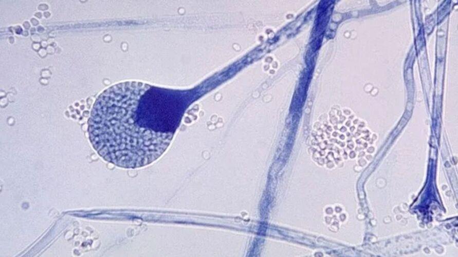 """Saiba o que é a mucormicose ou """"fungo negro"""", como também é chamada."""