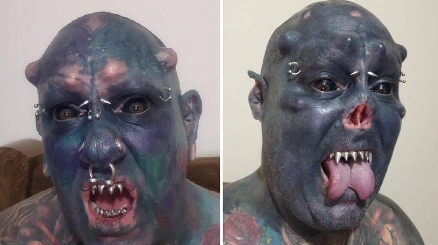 """Homem """"Caveira"""", gerou polêmica nas redes sociais ao multilar o nariz"""