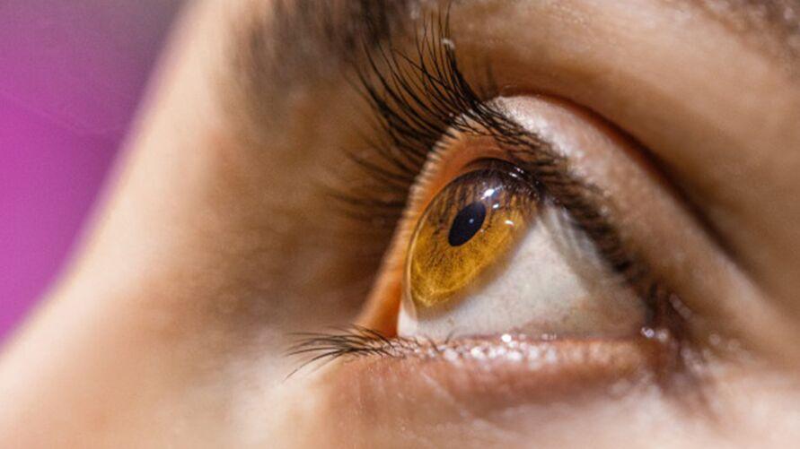 A vermelhidão e inflamação ao redor do olho pode causar dor e irritação, mas o terçol não é contagioso e pode ser facilmente tratado