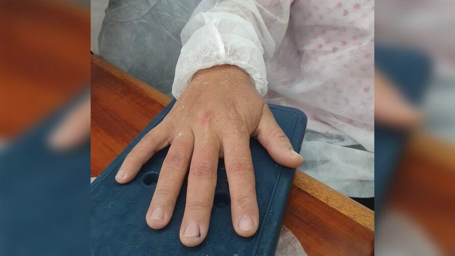 Enfermeira foi agredida por uma mulher, que ficou revoltada com a mudança no cronograma de vacinação contra a covid-19.