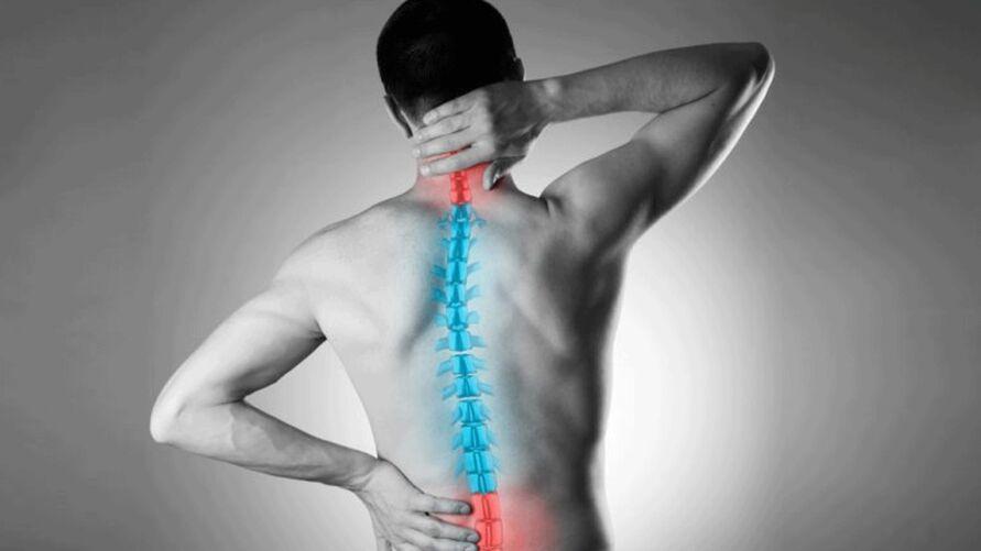 A má postura são um dos principais fatores do desvio de coluna