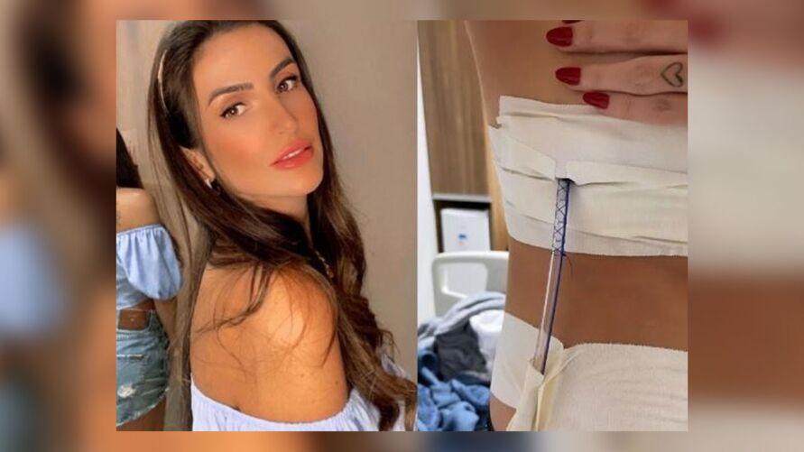 Empresária de 26 anos relatou momentos de desespero ao sentir os primeiros sintomas