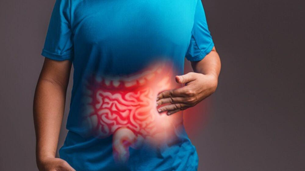 Imagem ilustrativa da notícia: Câncer de intestino está ligado a má alimentação